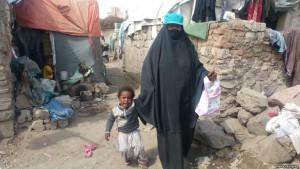 امراة وطفلها بمحوى الرماح شمالي صنعاء (إرفع صوتك)
